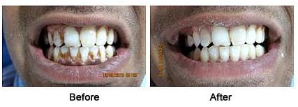 Dental Scaling Website